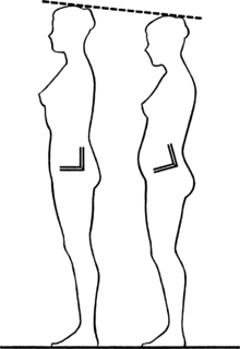 Example of anterior pelvic tilt (right) compared to normal pelvic positioning